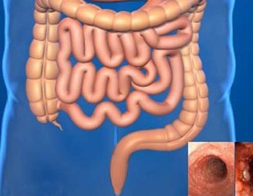 نشانه های سرطان روده بزرگ