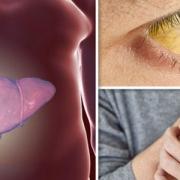 سرطان کبد و عوامل خطر