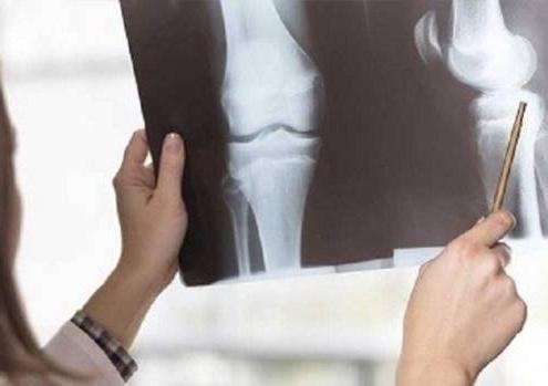 سرطان استخوان بدخیمی